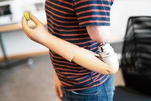 Foto van prothese met hand die klein object vasthoudt